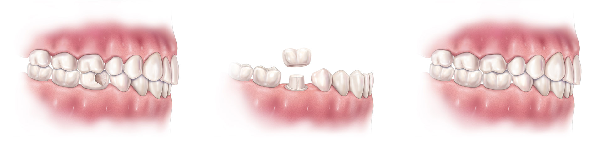This illustrates how a crown can successfully replace a damaged tooth.